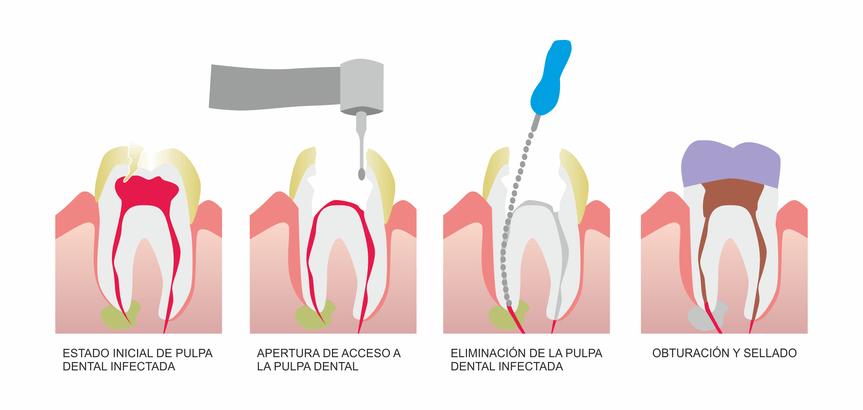 Etapas de endodoncia