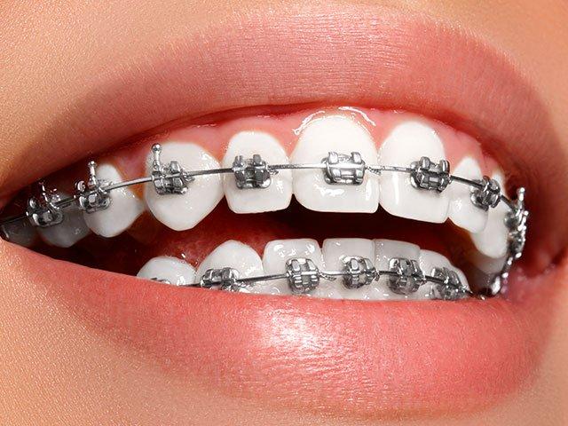 Ortodoncia y frenillos